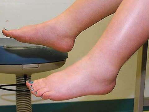 Ο όγκος αίματος μιας γυναίκας μπορεί να αυξηθεί κατά 30% έως 50%